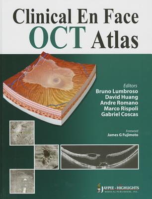 Clinical En Face Oct Atlas By Lumbruse, Bruno (EDT)/ Huang, David (EDT)/ Romano, Andre (EDT)/ Rispoli, Marco (EDT)/ Coscas, Gabriel (EDT)